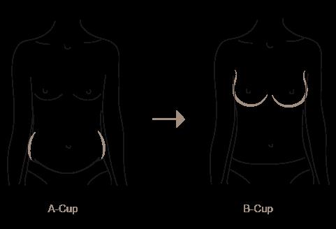 B nachher vorher von brustvergrößerung auf bilder d Brustvergrößerung 300
